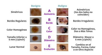 Lunares versus Melanoma 2